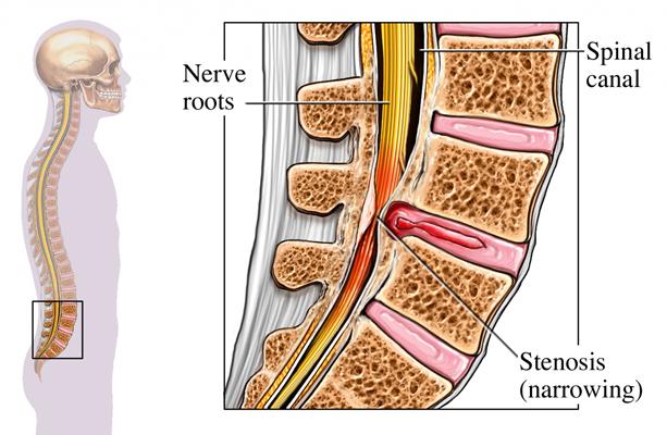 Spinal Stenosis Image